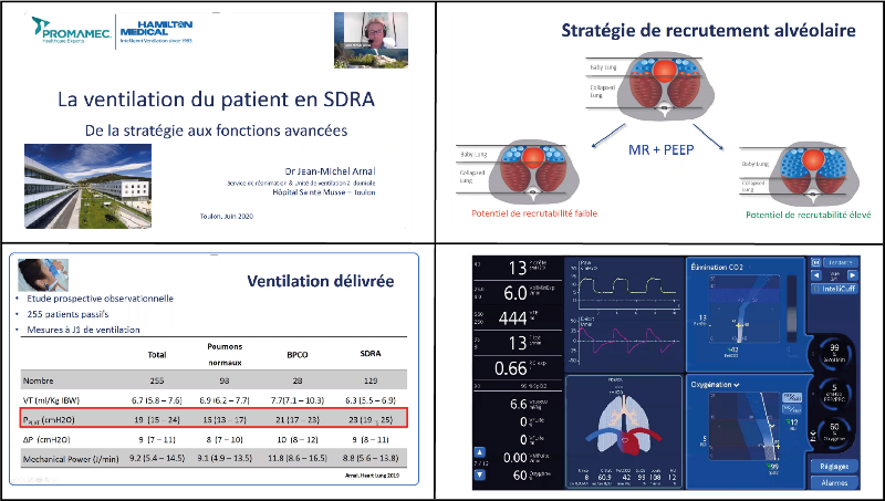 Webinar « Ventilation of patients with ARDS »I
